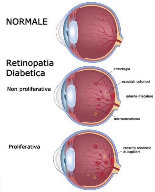 confronto occhio sano occhio retinopatico