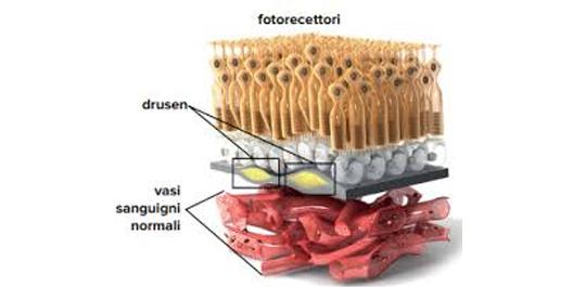 degenerazione maculare senile anatomia