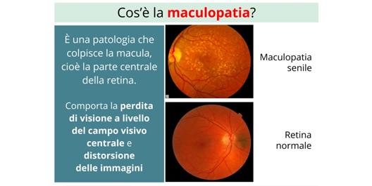Cosa è la maculopatia