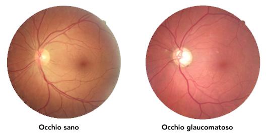 nervo ottico nel glaucoma