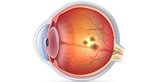 occhio con maculopatia