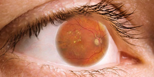 occhio retinopatia diabetica