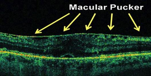 oct pucker maculare