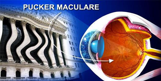 visione con pucker maculare