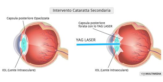 Trattamento YAG laser