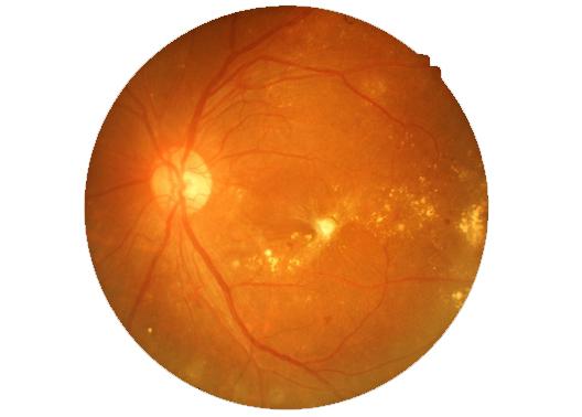 vascolarizzazione occhio retinopatia diabetica