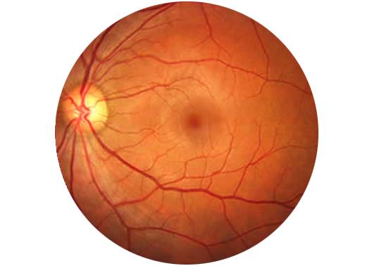 vascolarizzazione occhio retinopatia ipertensiva