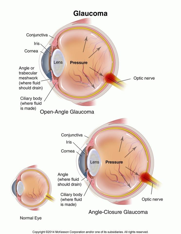 glaucoma angolo aperto e angolo chiuso